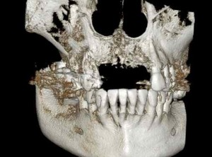 continuing dental education stripped down